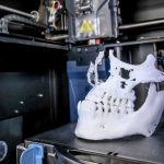 The uses of 3D printing in planning orthognathic surgery
