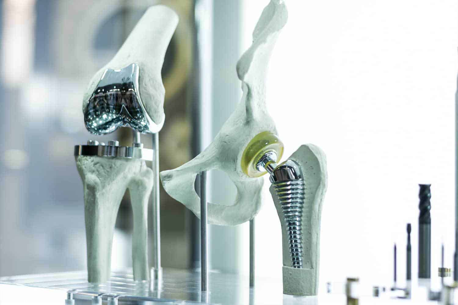 3D Printing For Orthopaedic Surgery