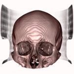 Download Human_Skull_2 Free DICOM file