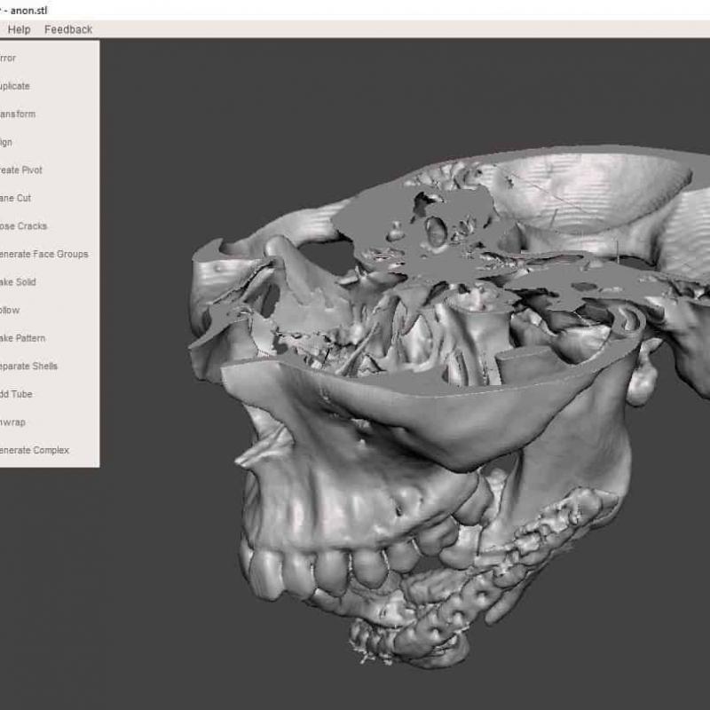 3D print a DICOM file