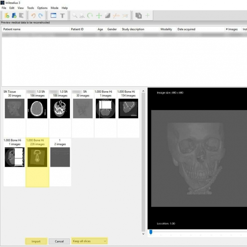 3D print a DICOM file | Medimodel